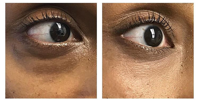 under eye bag removal